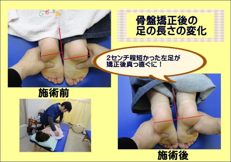 骨盤矯正後の足の長さの変化 2センチ程短かった左足が矯正後真っ直ぐに!
